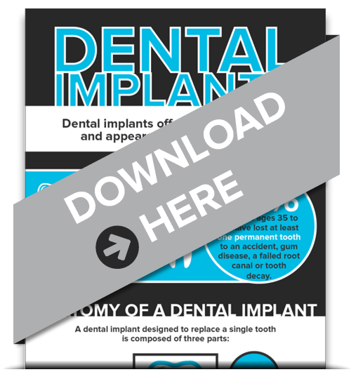 Dental Implants Marysville OH